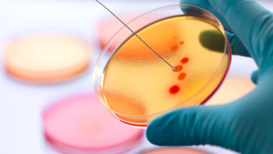 M. Sc. Microbiology: A remarkable career opportunity